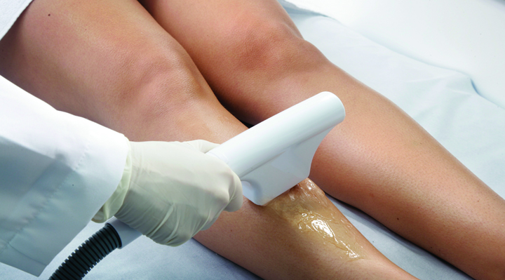 Beauty Tip   Laser Hair Removal | Naughty Guide
